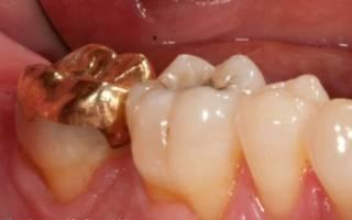 Металлическая вкладка на зуб