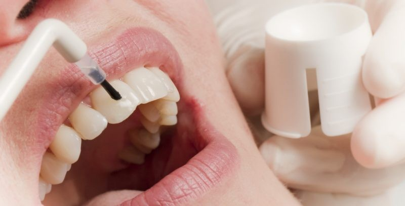 Процесс покрытия зубов фторлаком