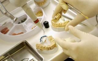 Изготовление зубных вкладок