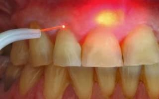 Лазерное лечение кисты зуба