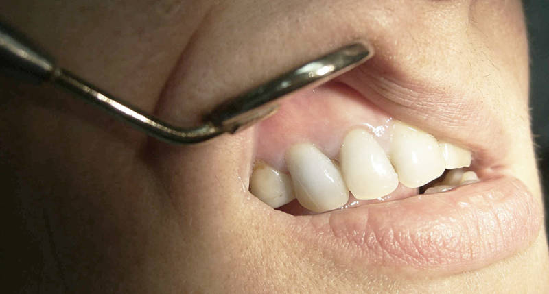 Диагностика кисты зуба