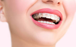 Как ставят брекеты на зубы – что ожидает пациента в кресле ортодонта?