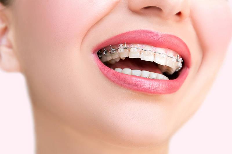Девушка с брекетами на зубах
