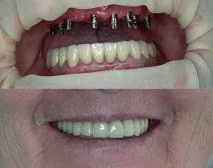 До и после базальной имплантации