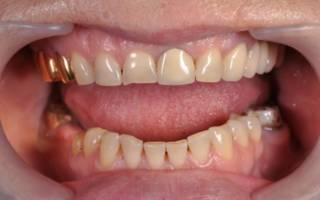 Цельнолитой протез задних зубов