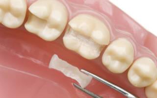 Что представляют собой вкладки на зуб и какие они бывают?