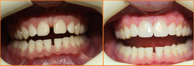 До и после лечения диастемы