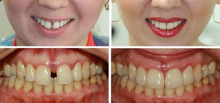 До и после устранения диастемы