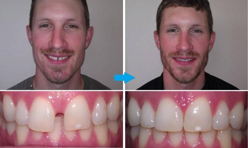До и после реставрации диастемы