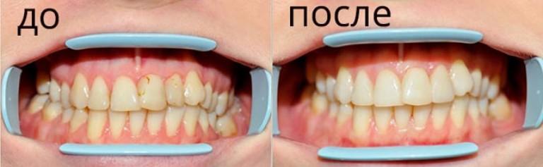 Фторирование зубов до и после