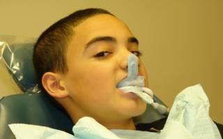 Электрофорез зубов