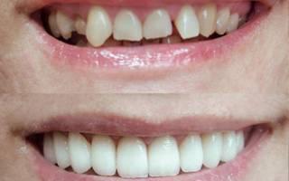 До и после художественной реставрации зубов