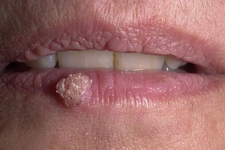 Папиллома на губе