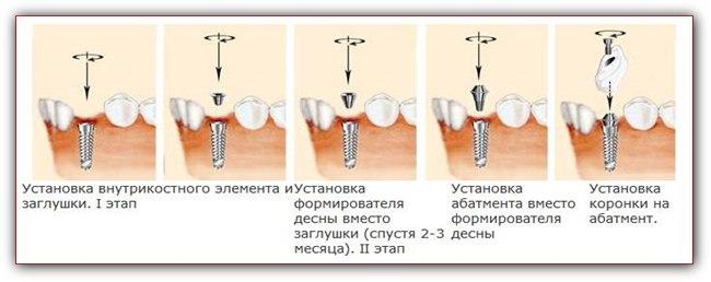 Имплантация с использованием формирователя десны