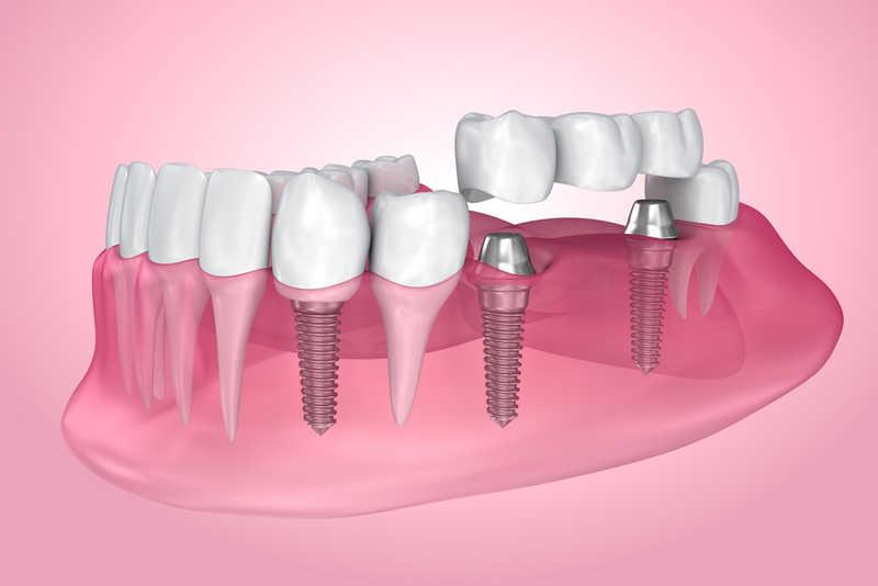 Базальная система для имплантации зубов