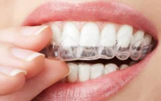 Ортодонтический элайнер