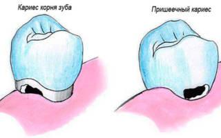 Кариес корня зуба и пришеечный
