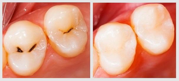 Лечение поверхностного кариеса - фото до и после