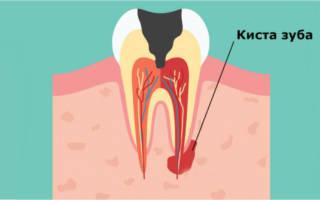 Рисунок киста зуба