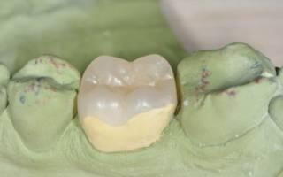 Композитная вкладка на зуб