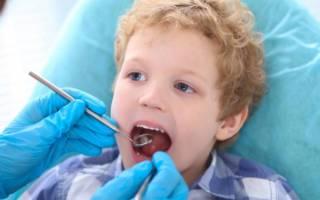 Что такое герметизация фиссур у детей и для чего она нужна?