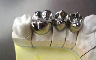 Протез на 3 зуба