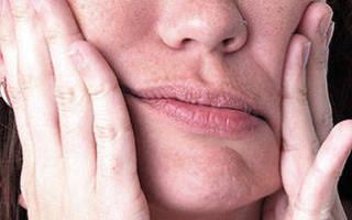 Парестезия после удаления зуба