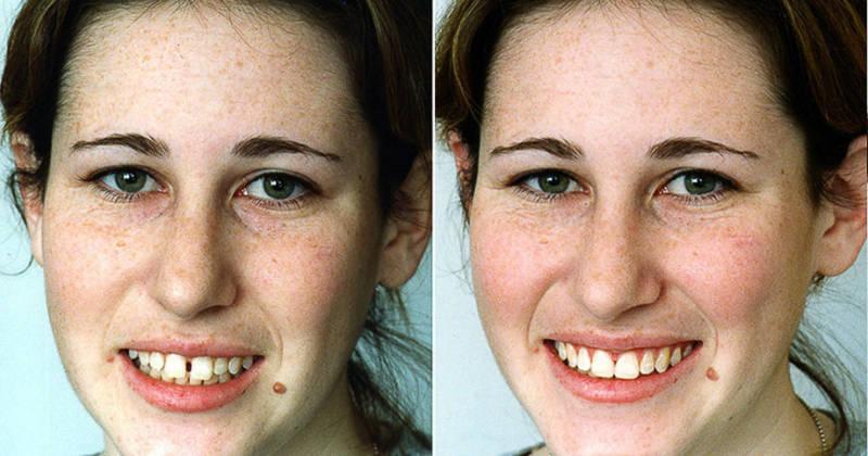 До и после лечения щели между передними зубами