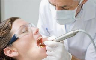 Санация полости рта