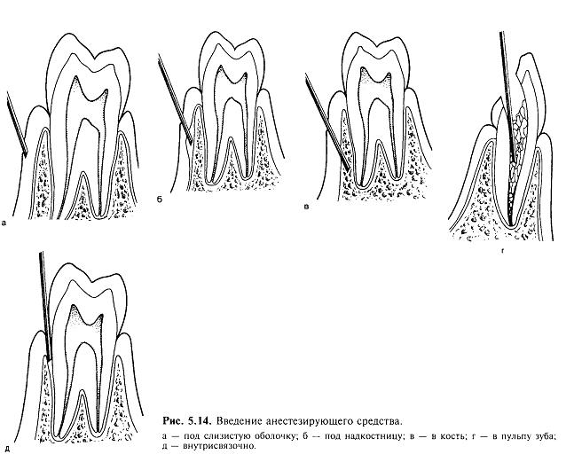 Схема видов анестезии в стоматологии