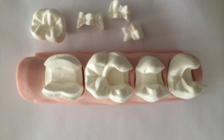 Слепки для изготовления зубных вкладок