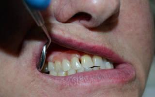 Микропротез во рту