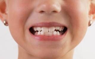 Постоянные зубы – сроки и длительность прорезывания