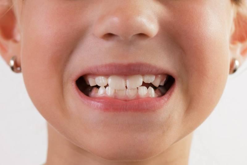 Как растут зубы у детей порядок прорезывания и сроки появления