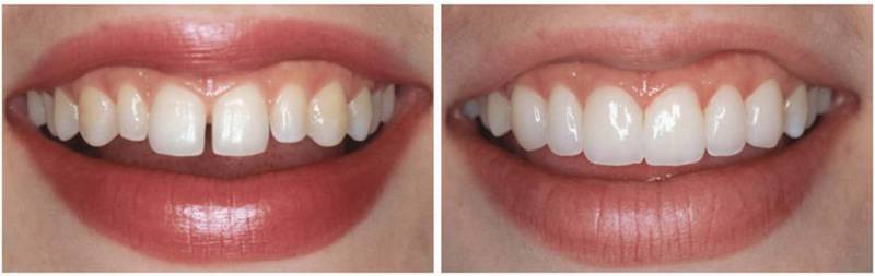 Убрали щель между зубами