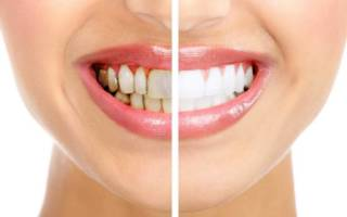 Отбеливание серых зубов