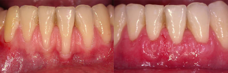 До и после лечения пародонтоза