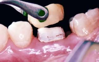 Наращивание зуба коронкой