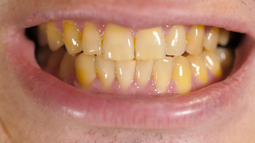 Чем убрать желтый налет на зубах