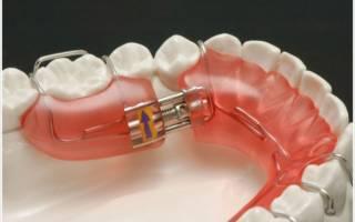Несъёмные пластины для выравнивания зубов