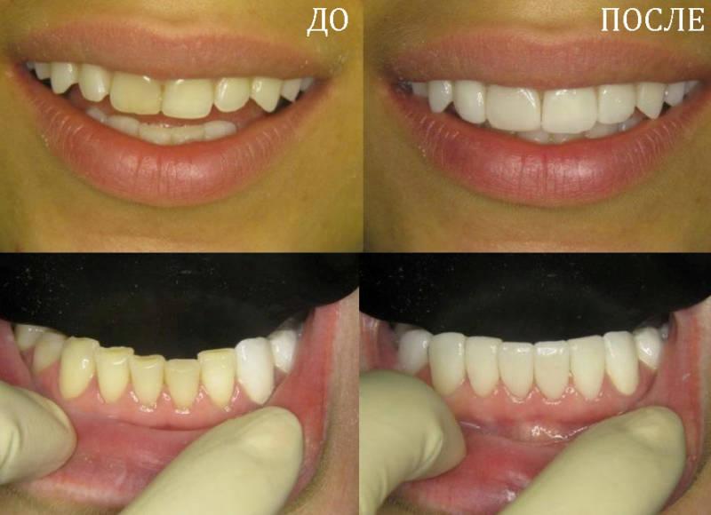 реставрация зубов - результат