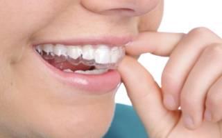 Капы на зубах