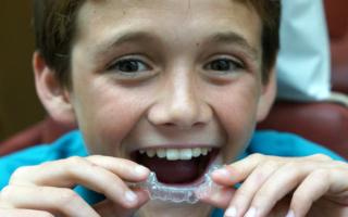 Детская капа для выравнивания зубов