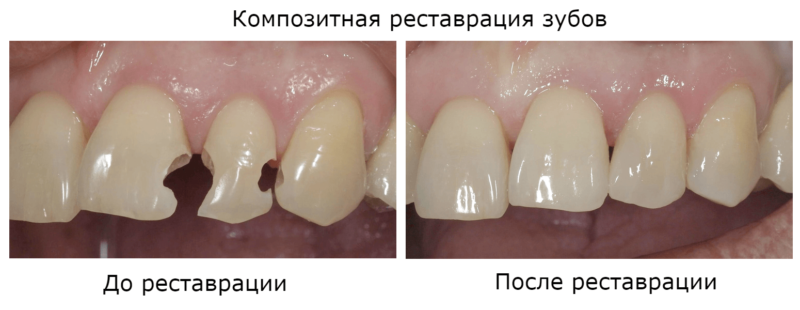 До и после композитной реставрации зубов