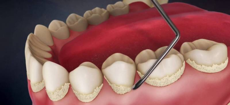 Чем растворить зубной камень в домашних условиях