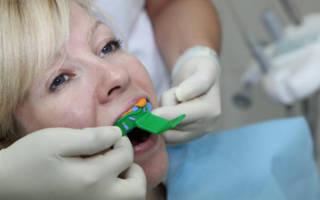 Снятие слепка верхних зубов