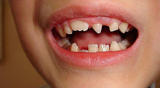 Как выглядит Зуб Пфлюгера