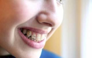 девушка с пластиной на зубах