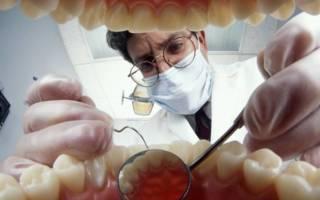 Осмотр зубов у стоматолога