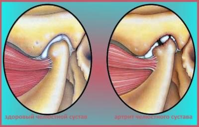 Артрит челюсти